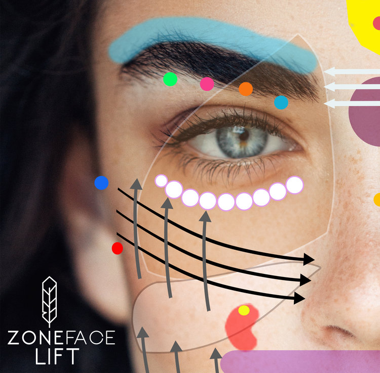 Zone Face Lift treatment – Takes off 10 Years in 12 Weeks