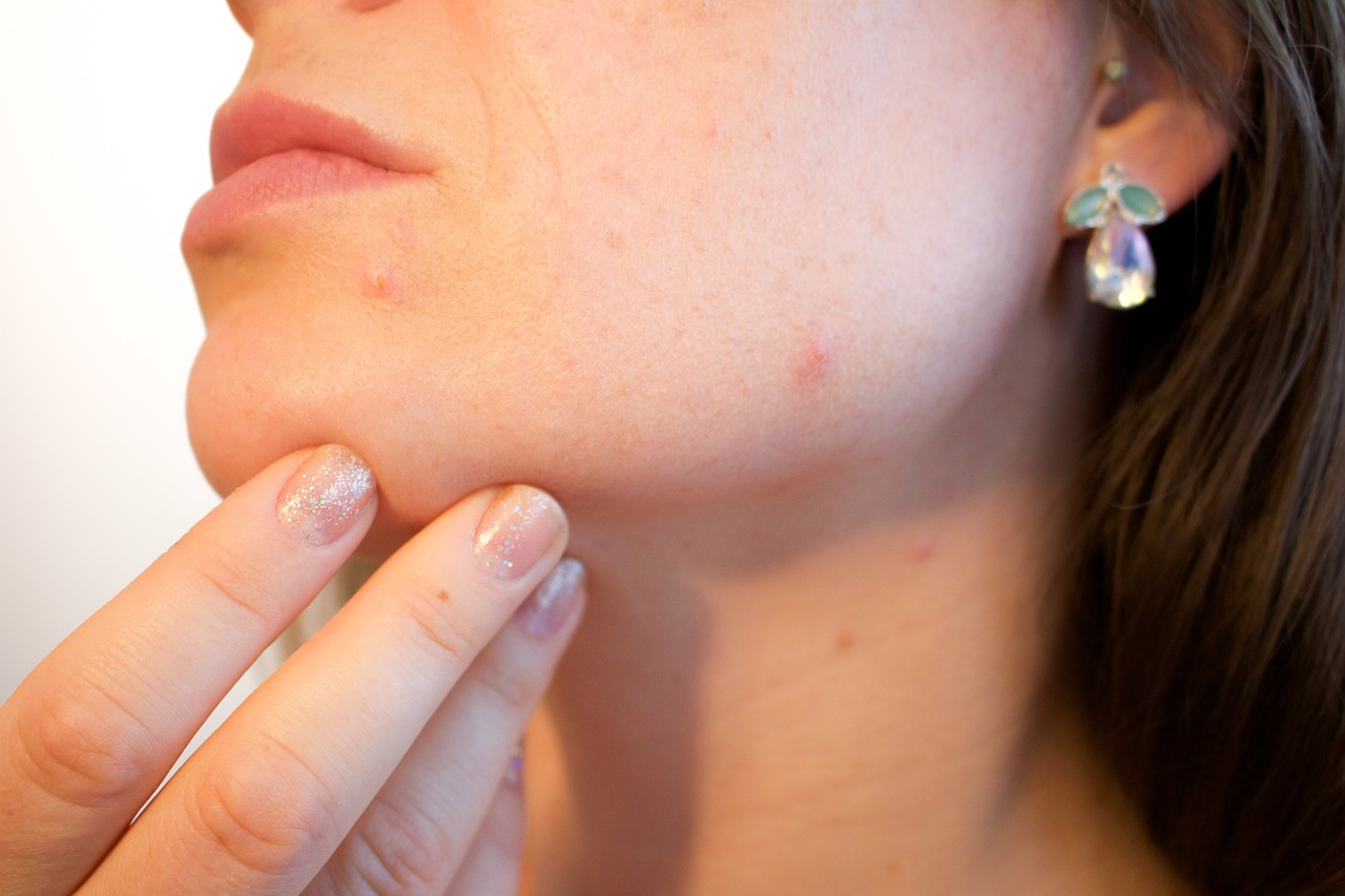 acne woman with zit